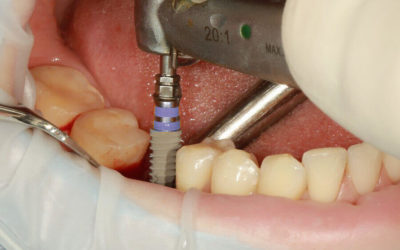 Implantation in Ungarn